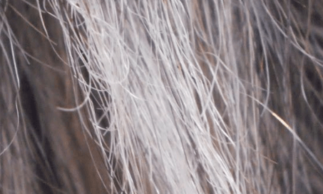 elasticos - Cabelos elásticos: Causas e tratamentos