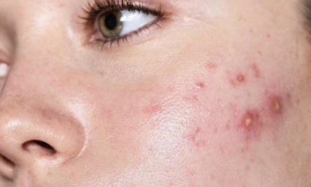 imagem acne - Acne: Causas e tratamentos