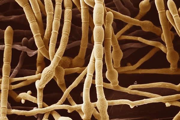 micose do couro cabeludo - Fungos no couro cabeludo